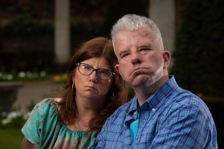 由於患有牟比士症候群,讓艾琳與亞歷克斯成為了「憤怒臉夫妻」。圖片來源/METRO