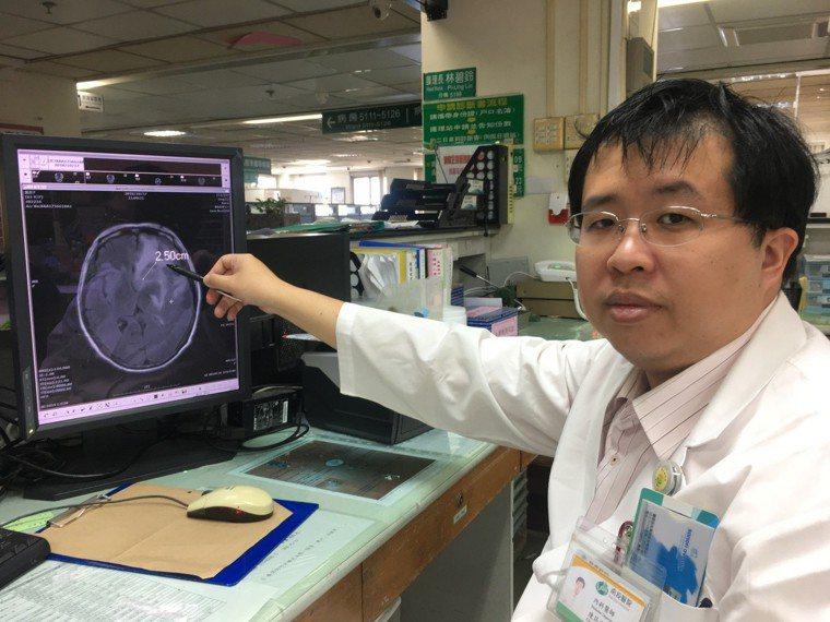 南投醫院陳筠方主任指出張姓婦人肺癌轉移到腦部,導致右側肢體無力。圖/南投醫院提供