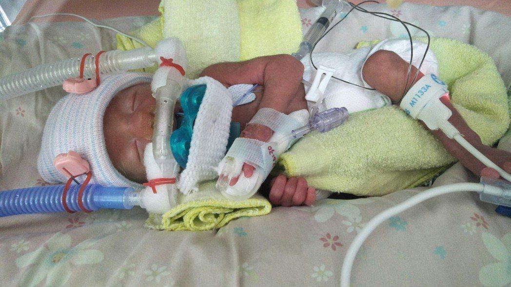 醬醬是早產寶寶,出生時僅1120公克,還沒有兩杯手搖飲來得重,必須靠呼吸器維生,...