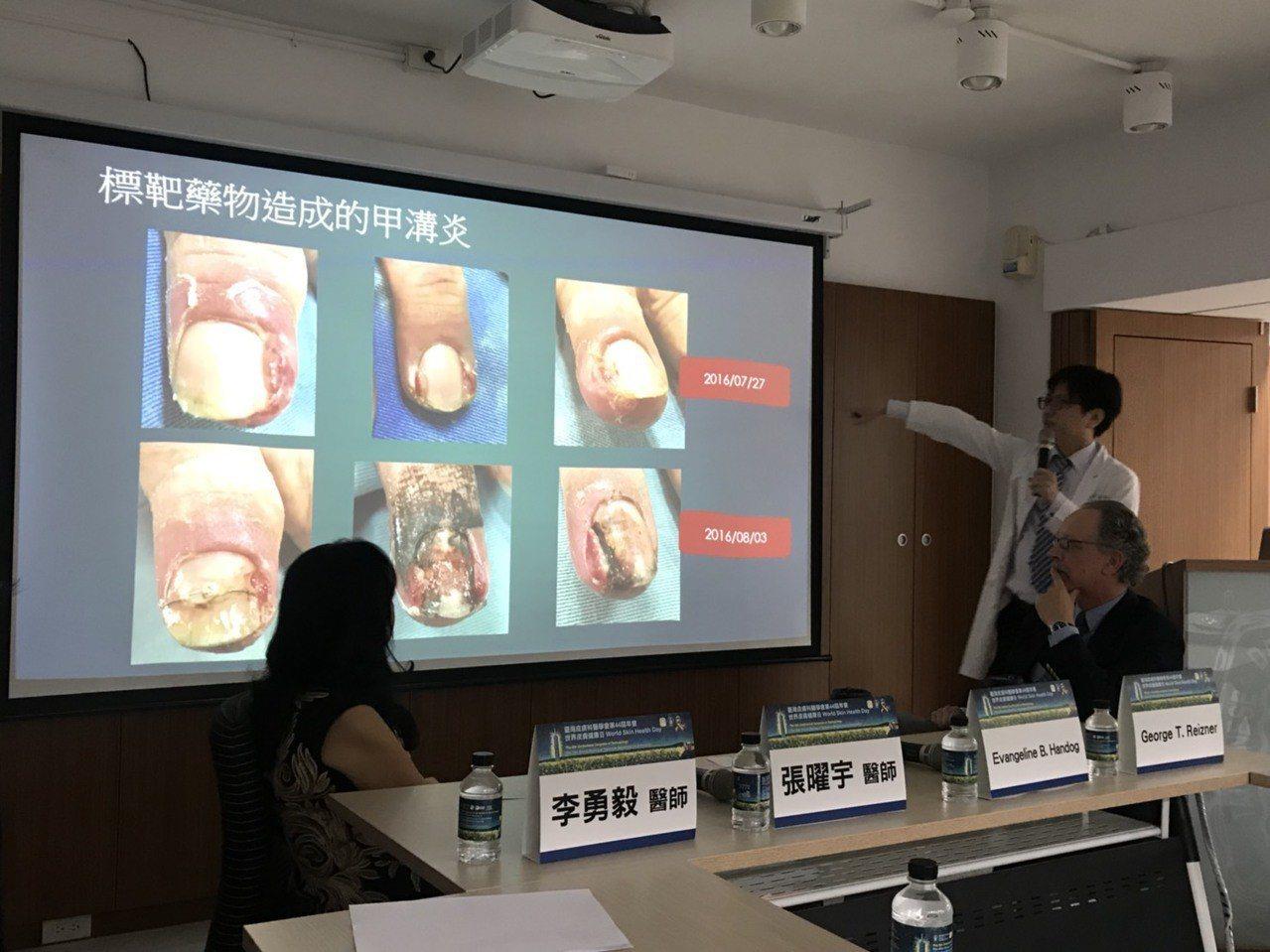 林口長庚醫院皮膚科醫師李勇毅(右)表示,甲溝炎不會傳染,除了與個人體質有關外,建...