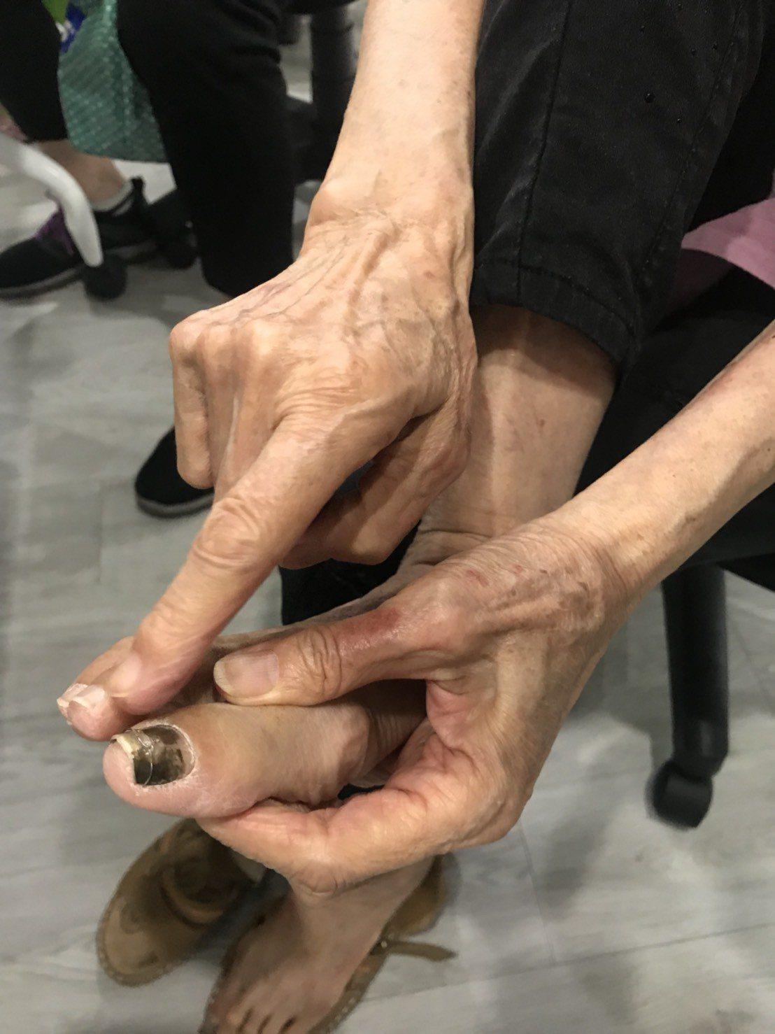 62歲劉奶奶是晚期肺腺癌患者,因無法開刀只能接受標靶藥物治療,但吃了一個月就出現...