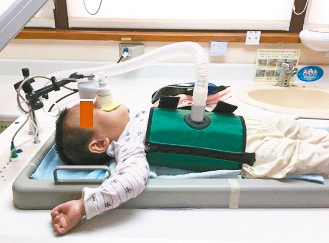長庚團隊研究發現,剖腹產增加氣喘兒風險。 圖/長庚醫院提供