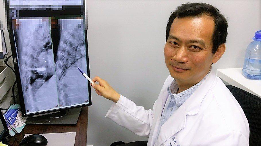 長安醫院關節治療科主任黃梓榕指出,有骨質疏鬆的中老年人,很多只是一次不小心跌倒,...