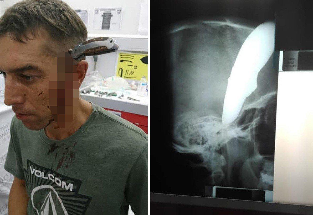 南非一名男子日前騎自行車上班途中,遭歹徒搶劫,並將一把15公分長刀插進他頭上,沒...
