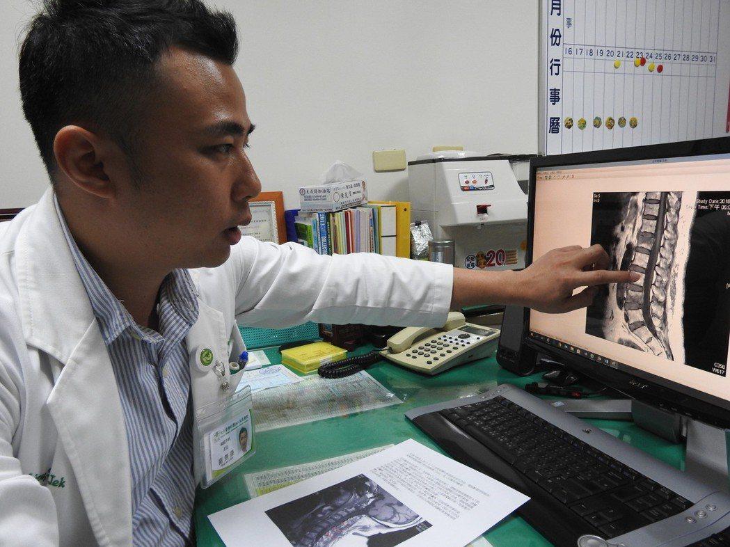 南投縣草屯佑民醫院神經外科主任劉善傑說明朱婦頸椎受傷狀況。記者賴香珊/攝影