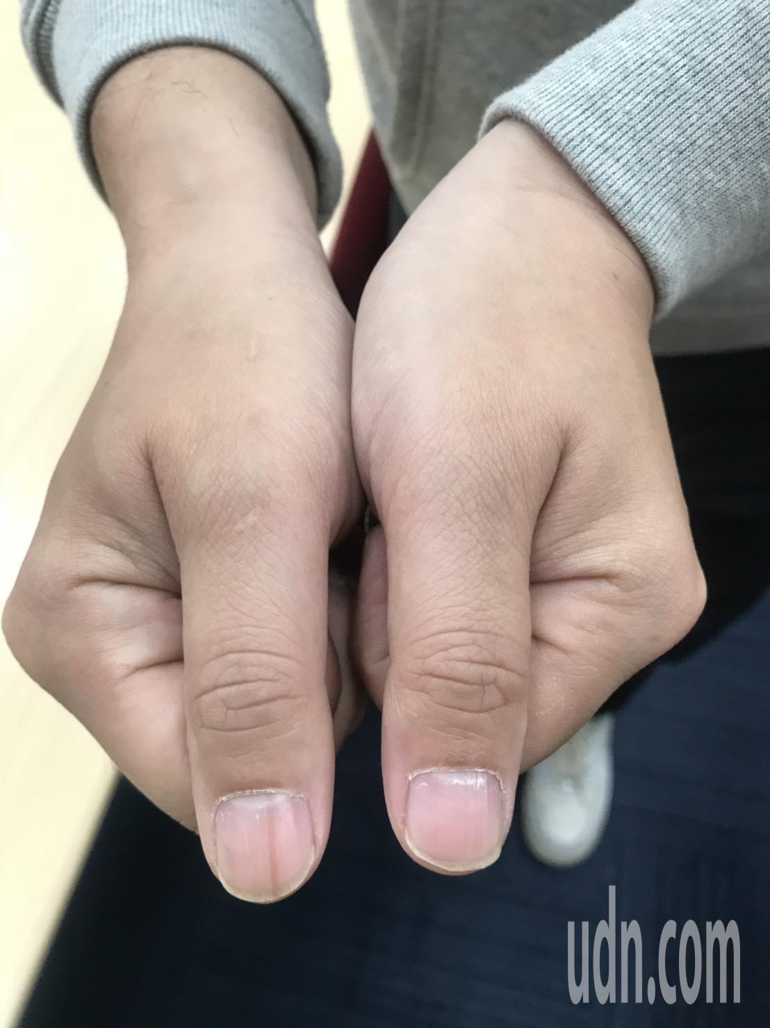 台北一名35歲的上班族,近年發現右手大拇指上出現淡淡黑色直線,雖不痛不癢也不影響...