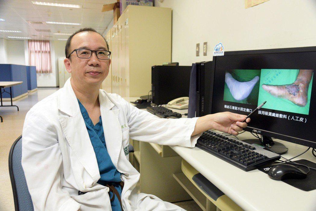 許宏達連續三年研究臨床皮膚移植手術,採用吸濕纖維敷料(人工皮)取代傳統的石膏副木...