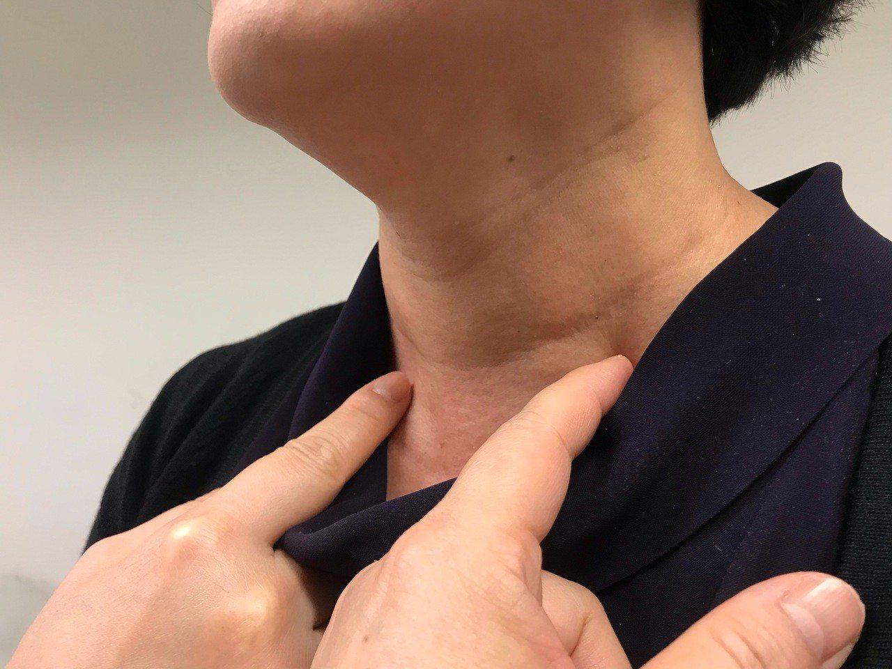 據統計,每10人中約4至5人頸部超音波檢測結果異常,發現節結,但9成以上屬於良性...
