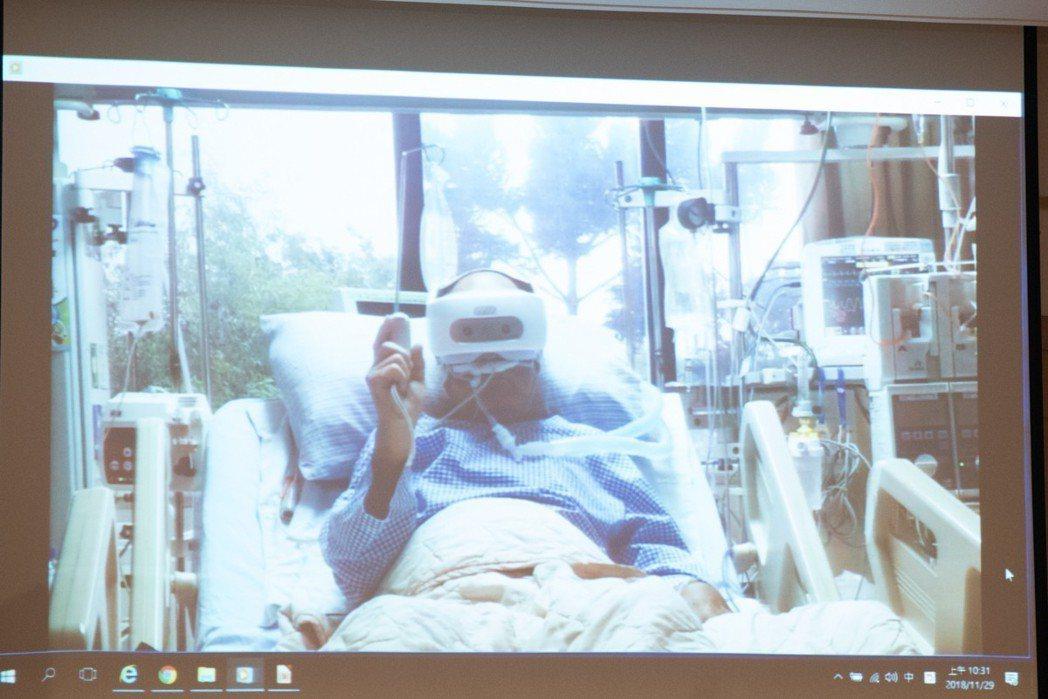 此次記者會展示臨床成果。 黃啟銘/攝影。