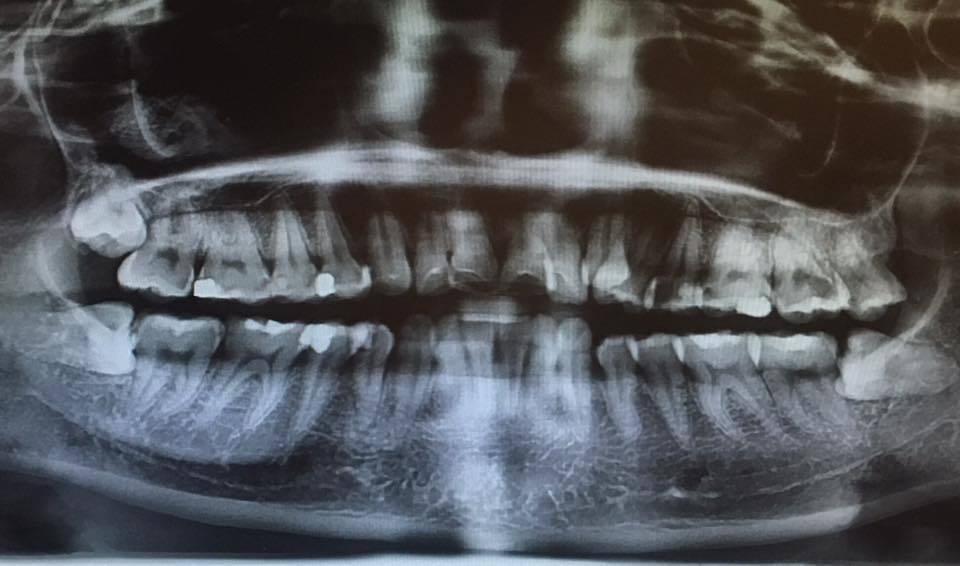網友公認最難纏的智齒就是水平又倒鉤的,都要處理很久。 圖片來源/●【爆廢公社二館...