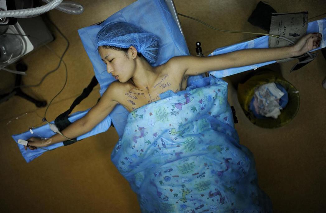 植入式醫療器材正面臨全面崩壞?國際調查記者聯盟(ICIJ)在25日發表《植入物檔...