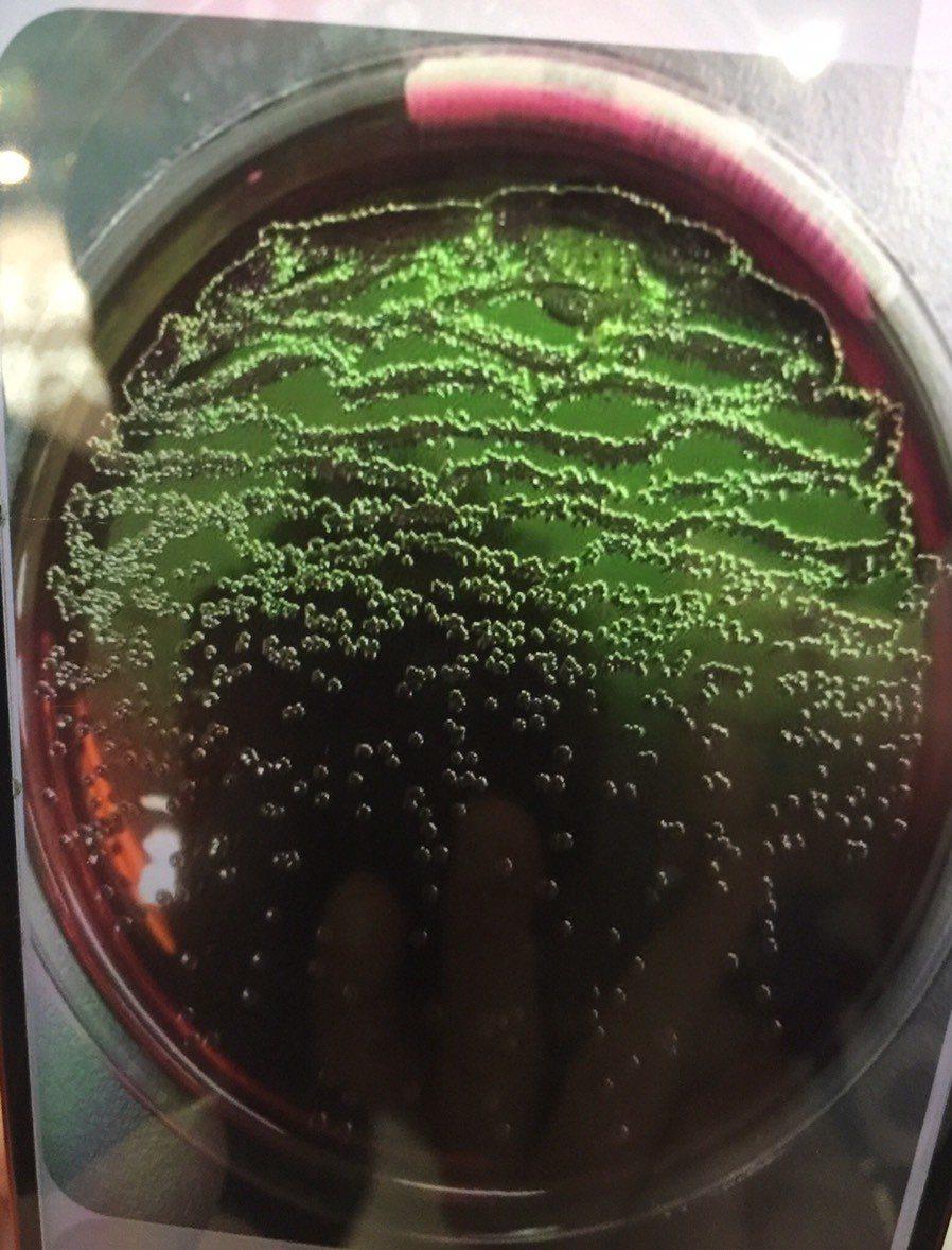 自動種菌系統及菌名鑑定質譜儀,是利用磁力的方式,將細菌畫在培養皿上,失誤率極低。...