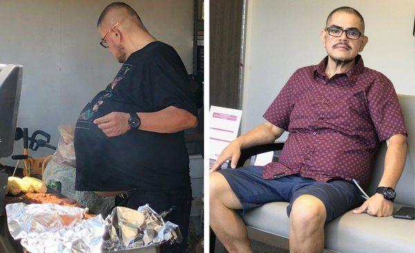赫南德茲異常鼓脹的肚子(圖左)原來是腫瘤作怪,手術切除後他恢復一般身材。(取自紐...