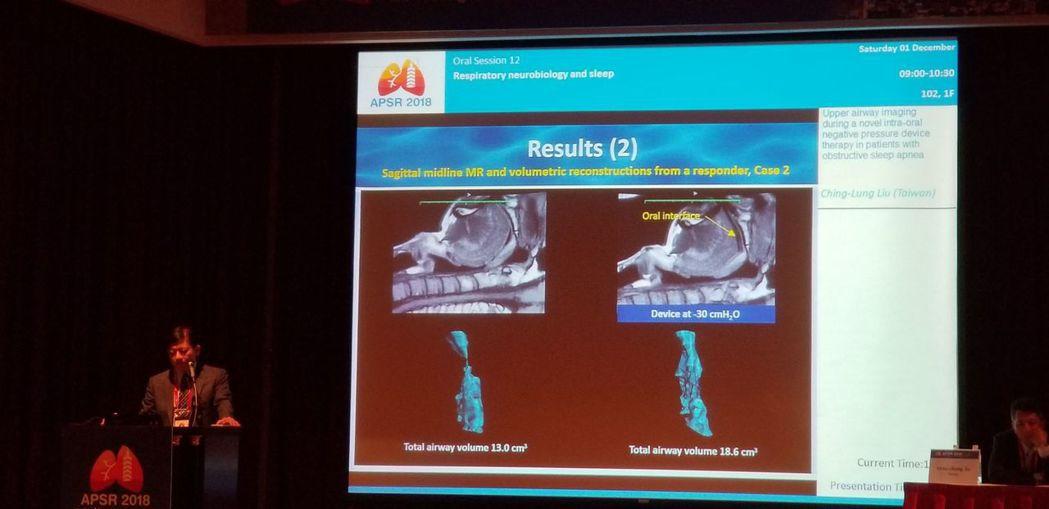 劉景隆主任醫師以MRI左右影像表達呼吸道在使用後的最狹窄處被增加了,圖上顯示綠色...