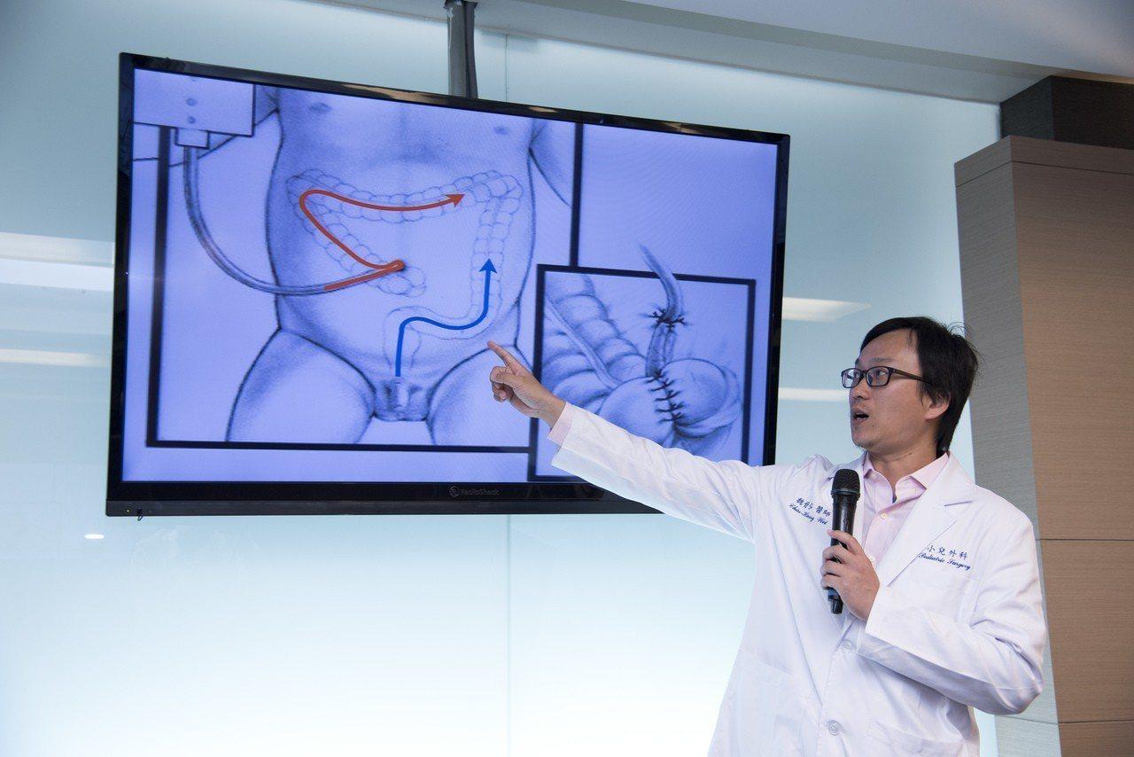 魏晉弘說明,「馬龍氏手術」是現今恢復期短、能讓小朋友自行灌腸的手術。圖/雙和醫院...