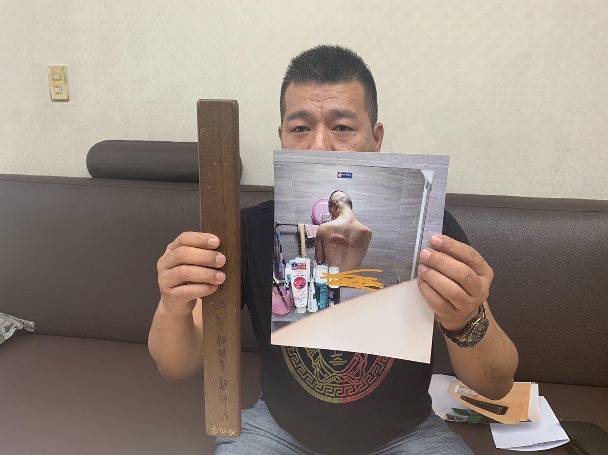 黃姓同學的父親拿出照片指控補習班痛毆兒子,造成兒子全身多處瘀青挫傷。記者巫鴻瑋/...