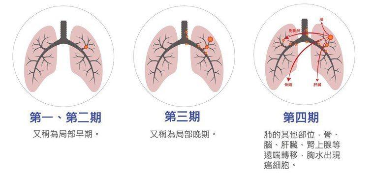 圖解肺癌分期。 圖/肺癌學會提供