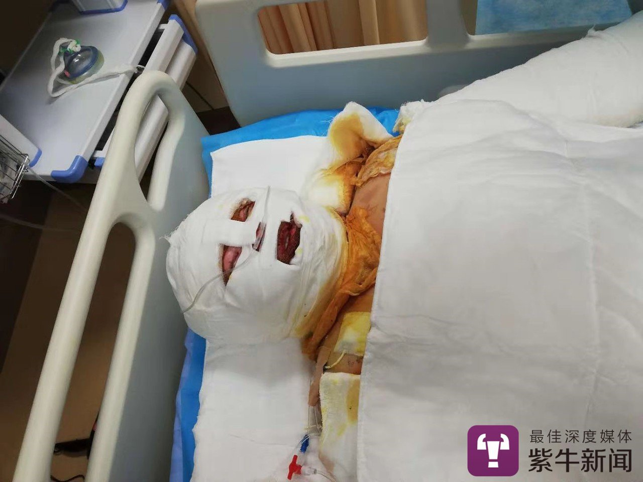 河南17歲少女李辰璽遭嚴重燒傷。圖取自紫牛新聞