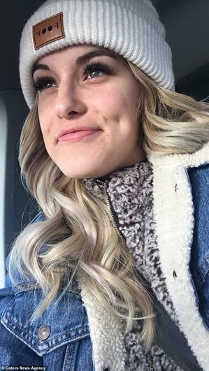 加拿大21歲女子阿里安娜(Arianna Kent)罹患「寒冷性蕁麻疹」,她對「...
