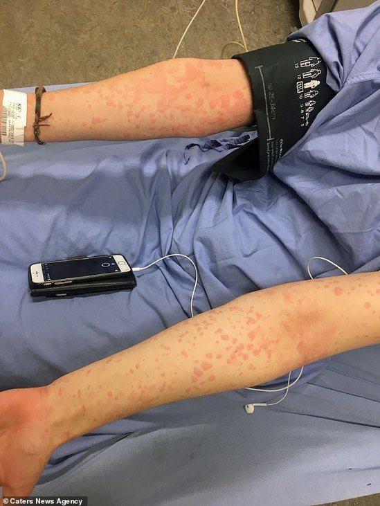 阿里安娜罹患「寒冷性蕁麻疹」,碰到寒冷就會全身起紅疹。圖取自每日郵報
