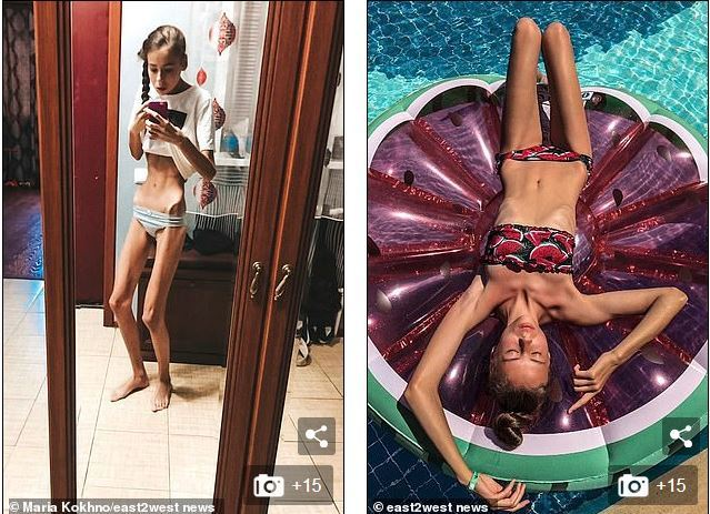年僅14歲的雙胞胎姊妹花瘋狂節食,最後減肥減到得了厭食症,外型變得宛如「喪屍」一...