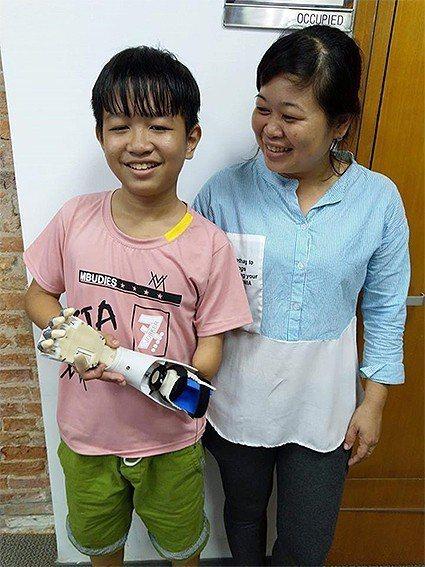 越南孩童Dang接到台灣神手開源義肢的開心笑容。 TGH台灣神手/提供