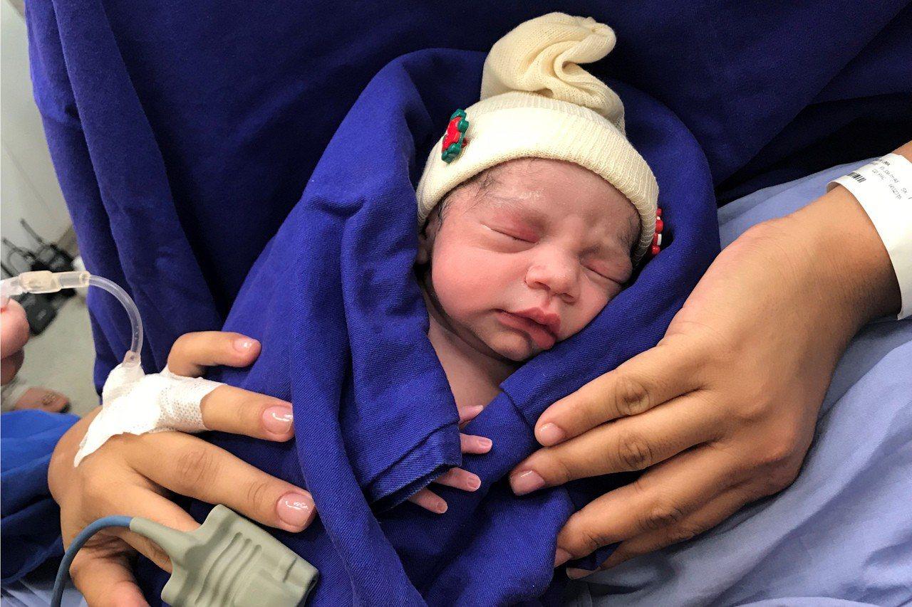 移植死人子宮誕嬰,巴西婦創先河。 美聯社