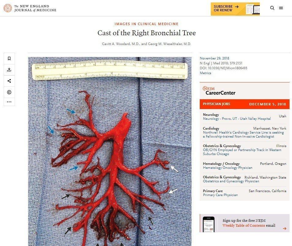加州男子因病劇咳,咳出右邊整個支氣管樹形狀的血塊。 圖/擷自新英格蘭醫學期刊網站