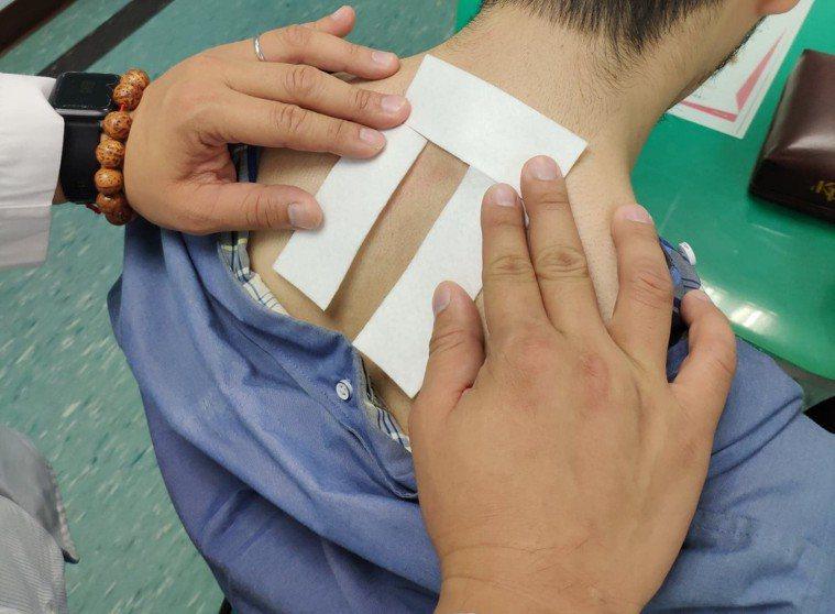 「三九貼」是傳統醫學對於慢性、虛寒性疾病的保養方法,和夏季「三伏貼」同樣屬於穴位...