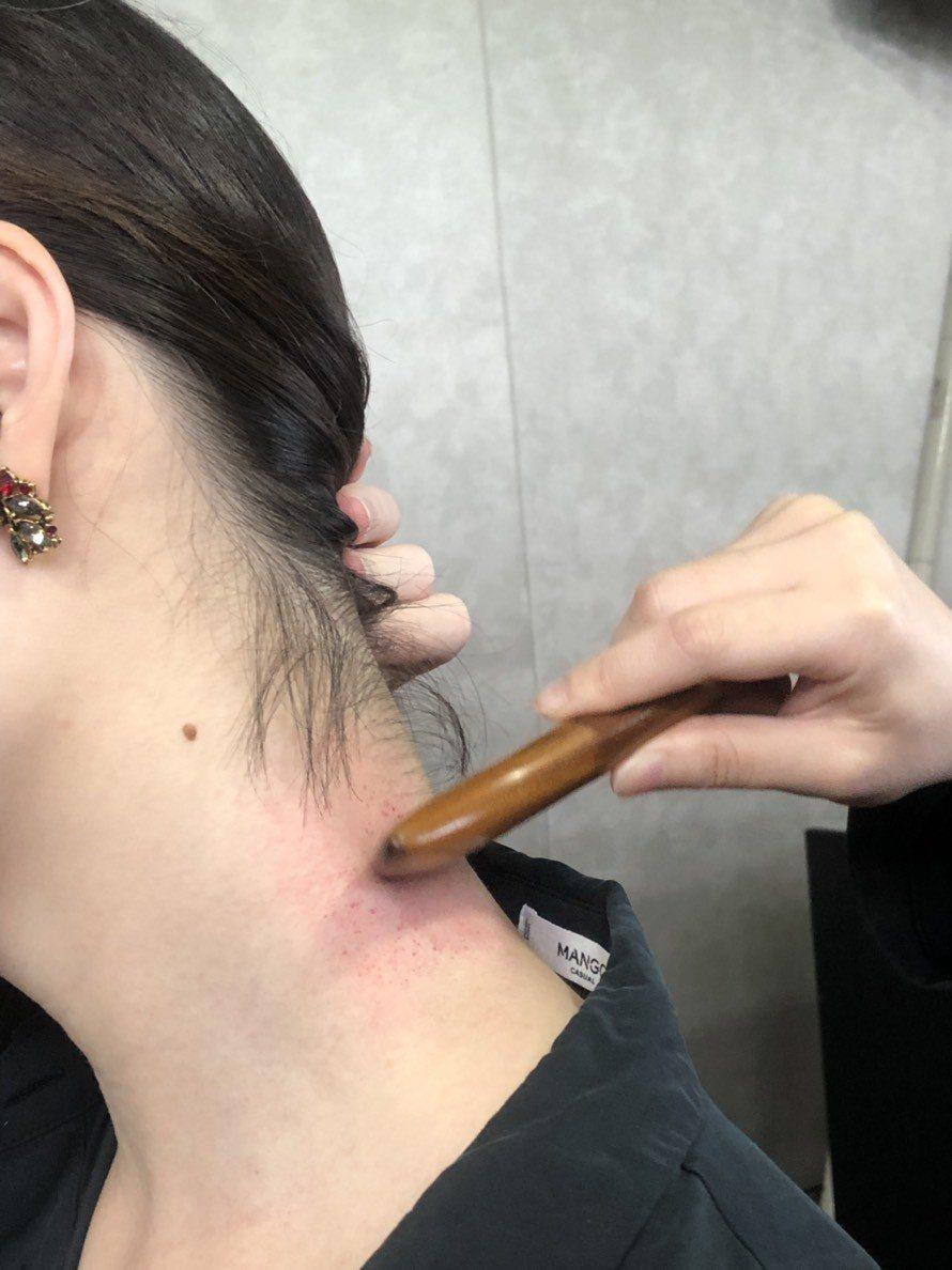 專家表示,若與C肝患者共用器具,就算是刮痧,也可能有感染C肝的風險。記者劉嘉韻/...