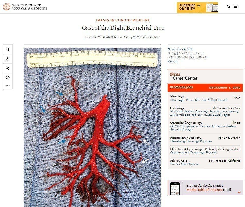 新英格蘭醫學期刊發表案例,一名加州男子因病劇咳,咳出右邊整個支氣管樹形狀的血塊。...