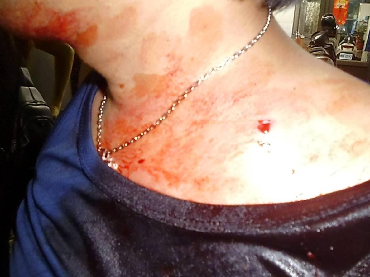 陳姓夫婦開車被張姓機車騎士攔下,張持空氣槍射傷陳的右肩,鋼珠彈卡在皮膚內。記者潘...