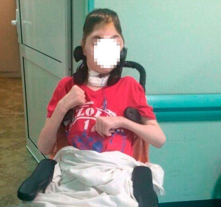 凡雅頭部遭兇嫌用啞鈴猛擊,額骨幾乎全碎。圖片來源/Mirror