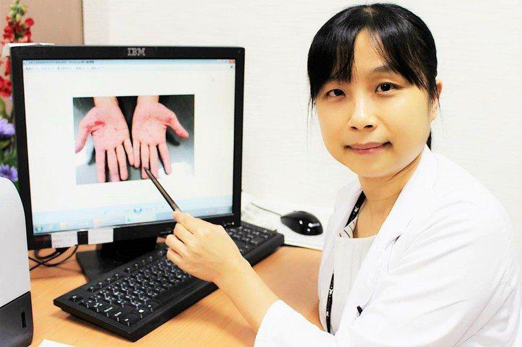 台中醫院感染科醫師曾婷玉指出,梅毒症狀變異性大,潛伏期可能長達至90天。