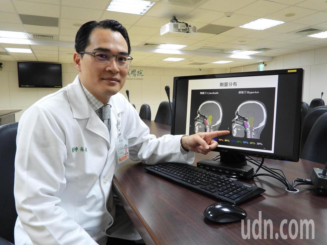 奇美醫學中心經放射腫瘤科主治醫師林裕為說明新技術如何精確鎖定細小腦瘤、投射高劑量...
