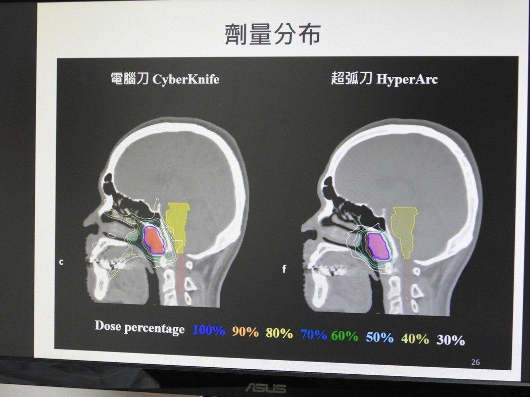 奇美醫學中心引進的新技術能精確鎖定細小腦瘤、投射高劑量放射線又不傷及周邊組織。記...