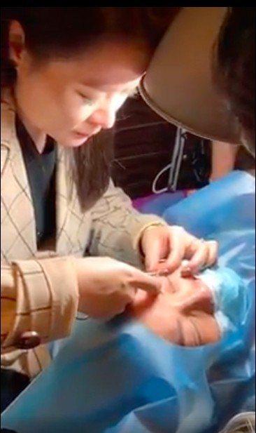 網友范小姐在網路上分享參與雙眼皮課程的可怕經驗。圖/翻攝自爆料公社影片