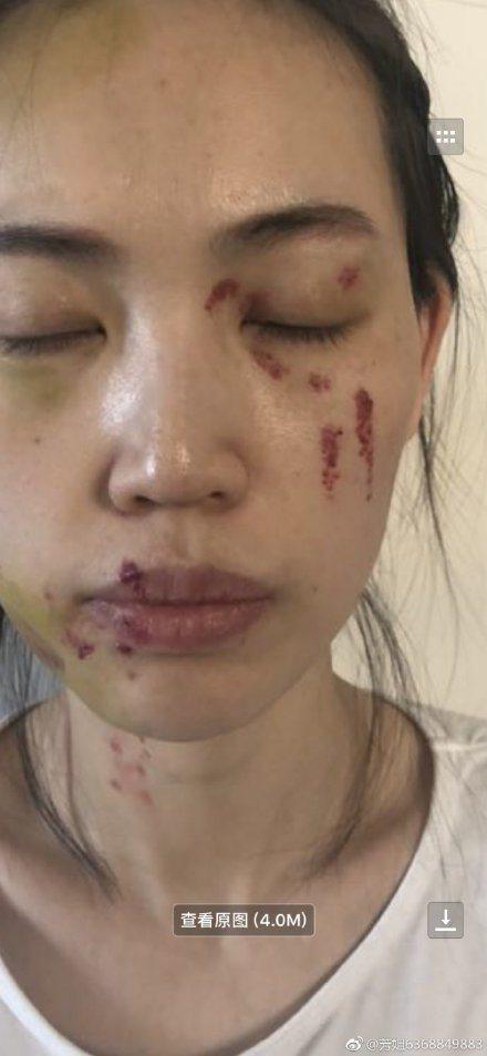 馬蓉友人曝光她的受傷照。圖/摘自微博