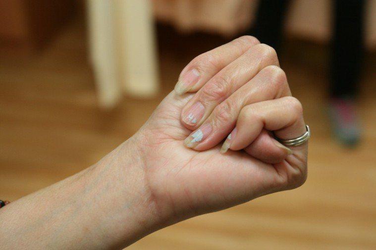 4隻手指仍蓋不住彎曲的大拇指,是遺傳「馬凡氏症侯群」特徵。 圖/台中慈濟醫院提供