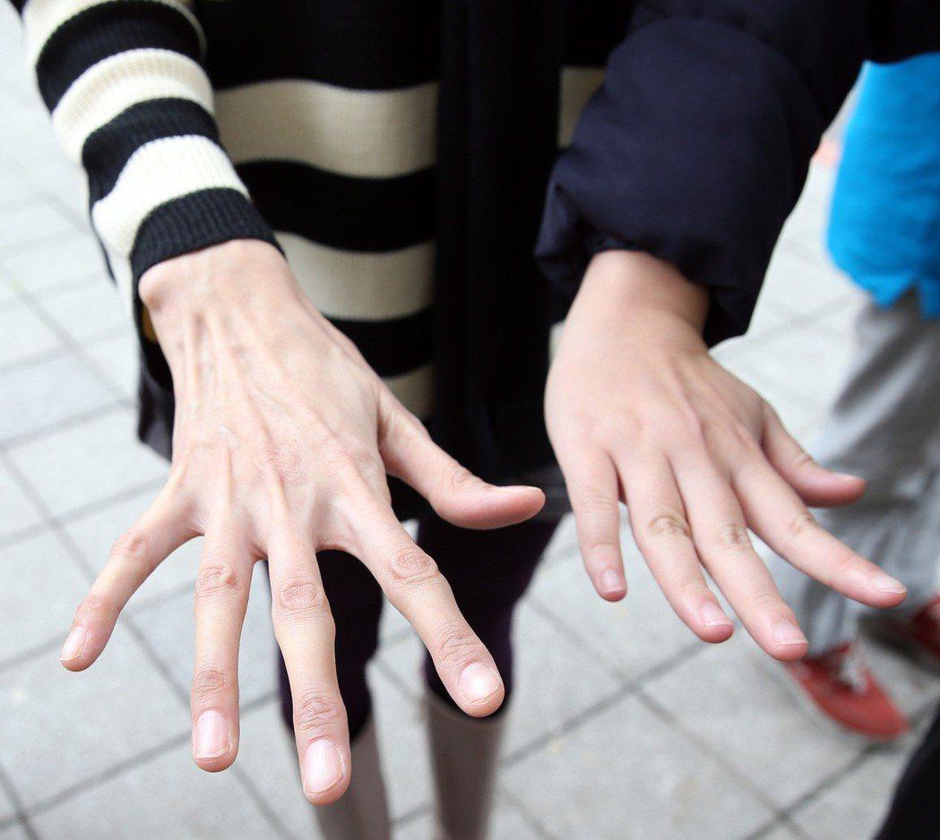 馬凡氏症患者的手(左)。 記者陳易辰/攝影 報系資料照