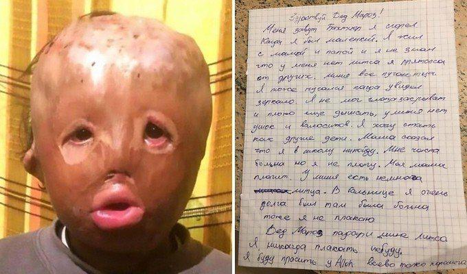 5歲男童辛卓夫(Bakhtiyer Sindrov)嬰兒時期被大火燒毀臉部,今年...