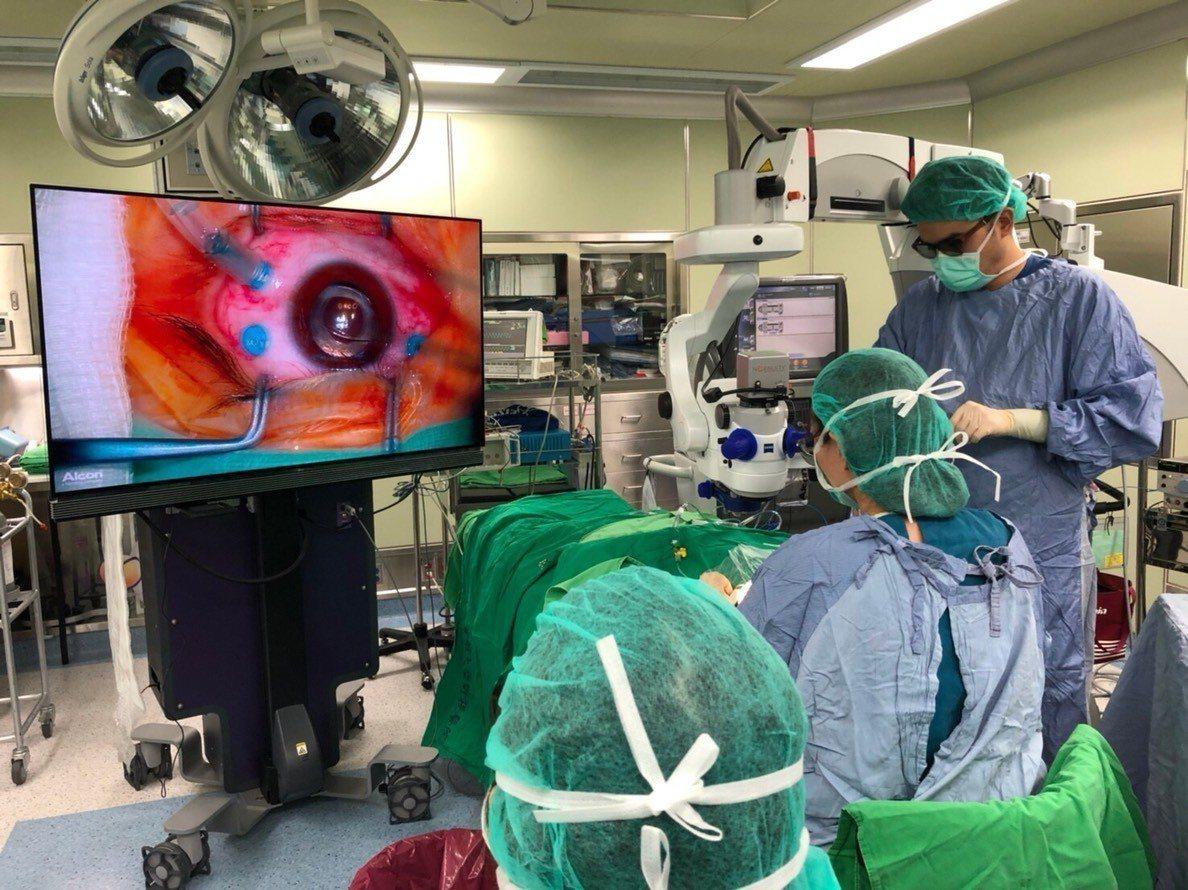 相較傳統顯微鏡影像手術,目前有3D立體影像眼部手術,能讓醫師不必彎腰低頭開刀,且...