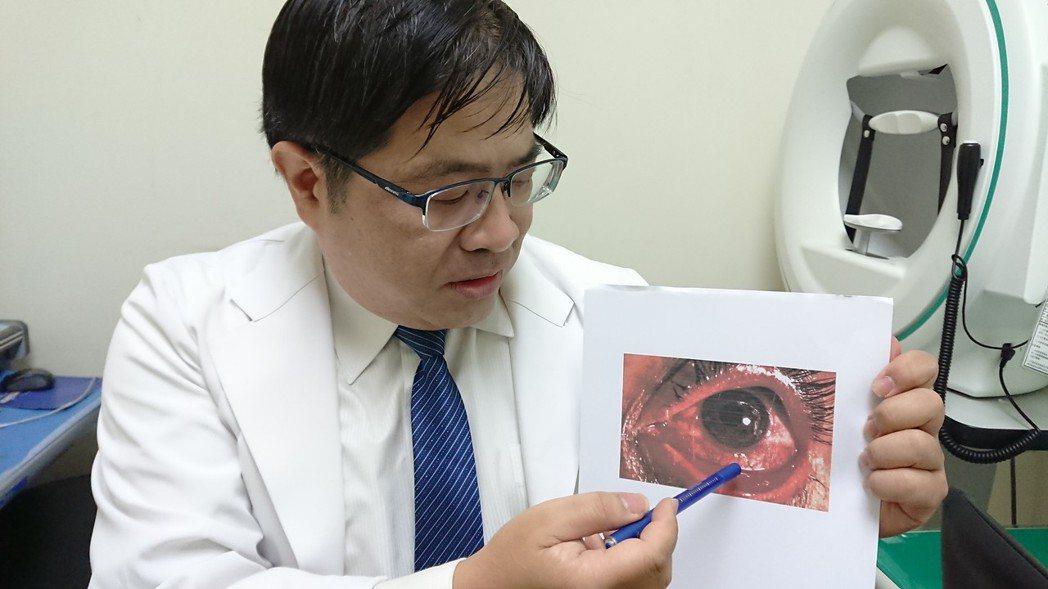 輔英科技大學眼科主治醫師洪啟庭最近收治多名病毒性結膜炎患者,疑因空汙引發病毒變異...