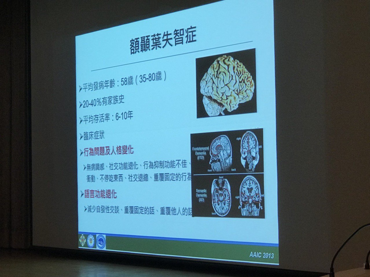 王培寧說,顳葉掌管語言能力,故額顳葉型失智症的退化以行為問題和語言障礙為主,加上...