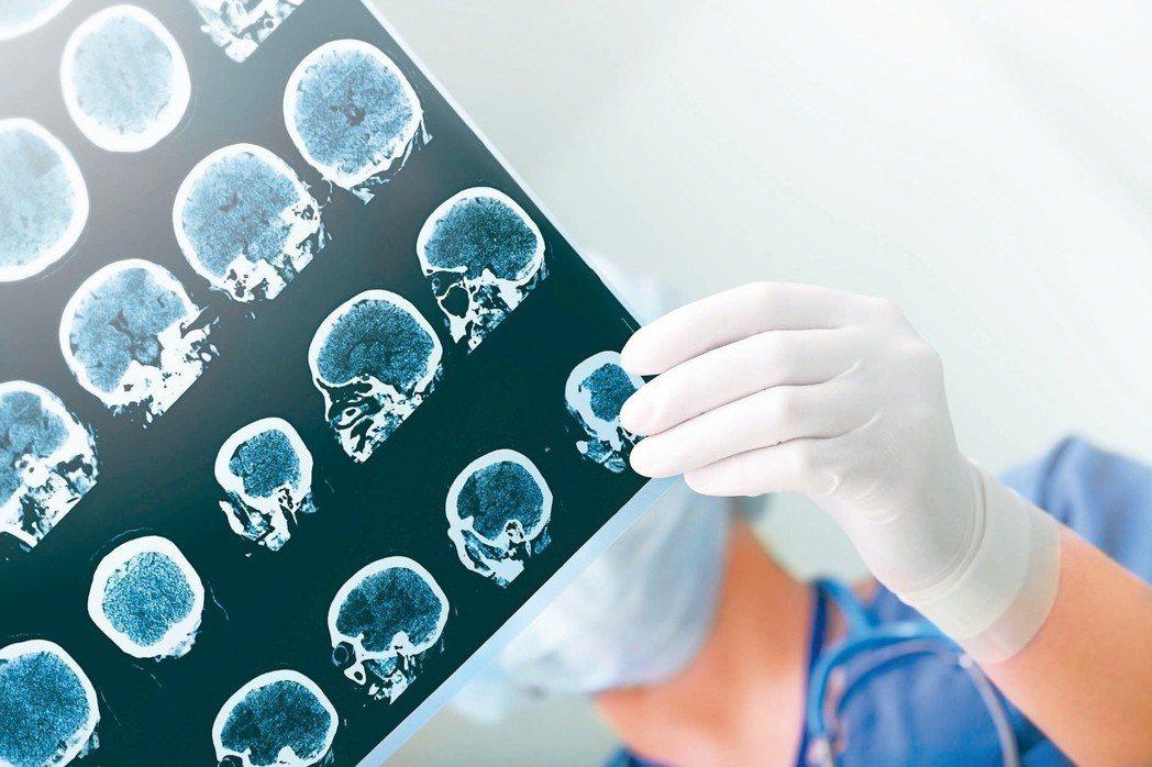中風發生後,患者言語與行動等能力受到影響。 圖/123RF