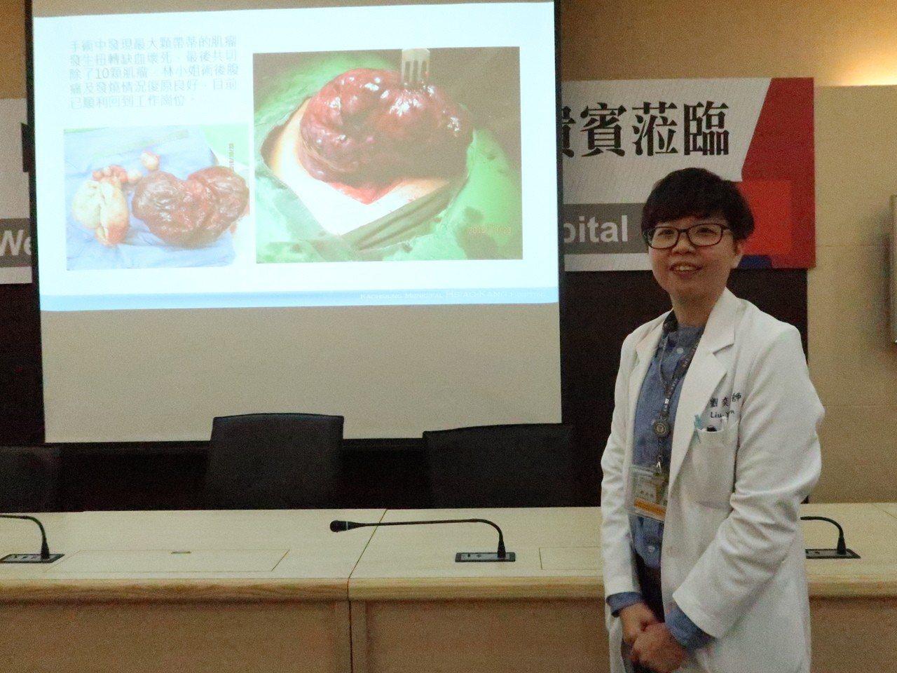 小港醫院婦產科醫師劉奕吟表示,預防肌瘤的發生最好能減少環境荷爾蒙的暴露,建議要規...