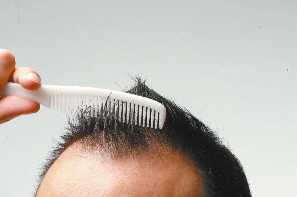 醫師楊名權說,戴安全帽若長期流汗又悶著,確實可能導致毛囊發炎、增加落髮風險,但一...