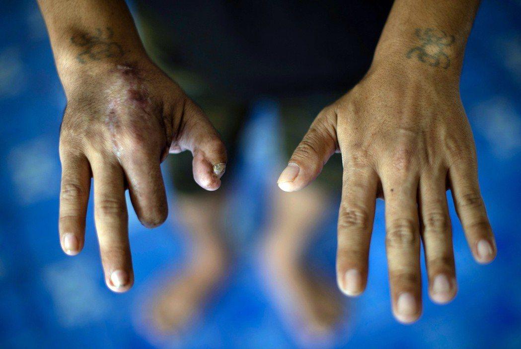 生而為「奴」?緬甸都充斥著人口販運、人力剝削的濫況。圖為一名被騙去泰國工作的緬甸...