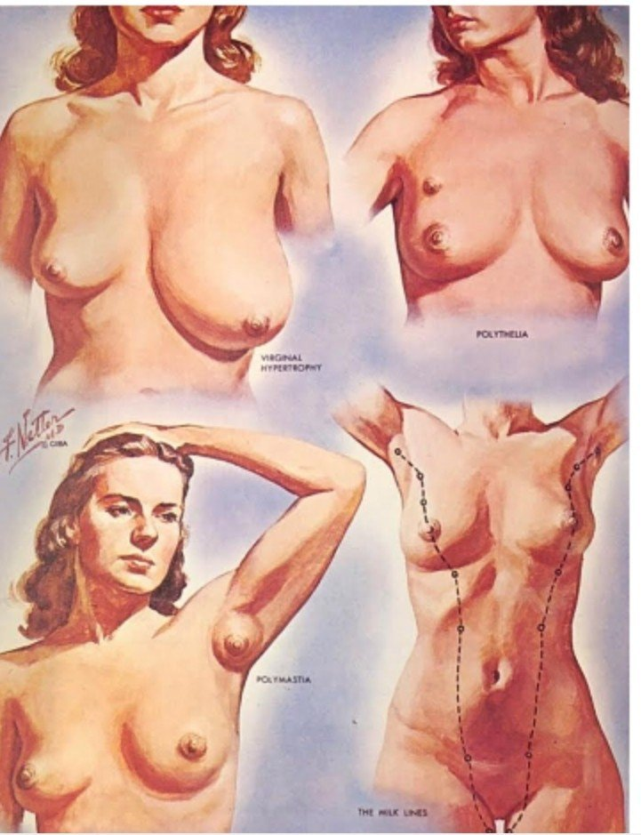 多乳症的患者有不只兩個乳房。圖/郭綜合提供
