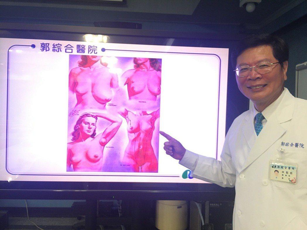 郭綜合醫院整形外科醫師林聖哲。圖/醫院提供